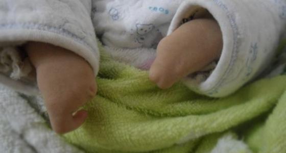 看到剛出生的嬰兒..醫生驚訝不語,原因竟然是?!父母知道後氣...