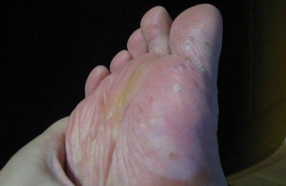 脫鞋終於可以不用再尷尬了,這15種去腳臭的方法,再臭也能輕鬆...