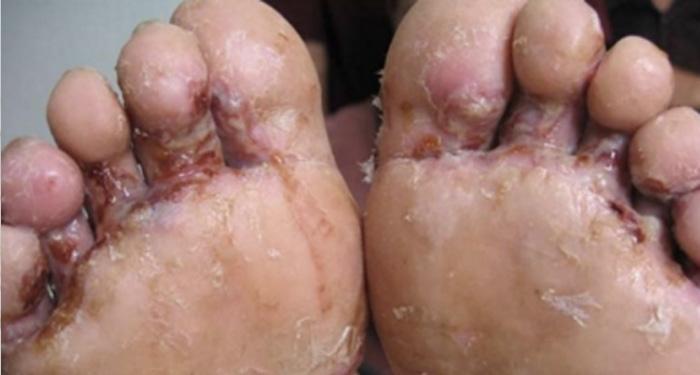 超級癢!!治好上萬人的香港腳秘方終於找到了!!網友實測都說超...