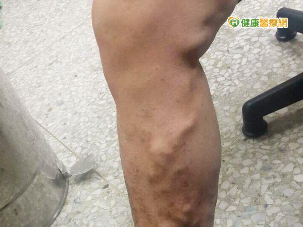 靜脈曲張爬上腿雷射微創手術傷口小...