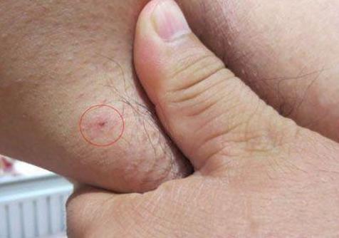 這種腋下腫物,竟是「這種東西」一定要留心!太可怕了...