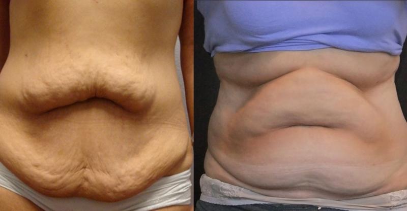 根本活該!你產後肚皮又大又鬆不是沒有原因的!只因為你犯了三大...