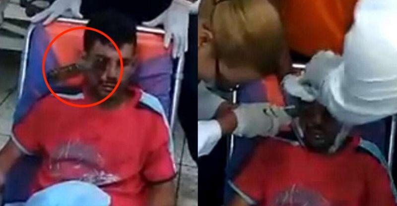 一名傷患眼睛插著「一把刀」被送到醫院,醫生竟然用這麼可怕的方...