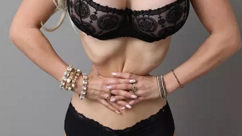 400萬的手術,她鋸掉了6根肋骨,曾經的清純美少女把自己整成...