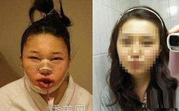韓國女生整容過程真驚悚整完後美到不行...