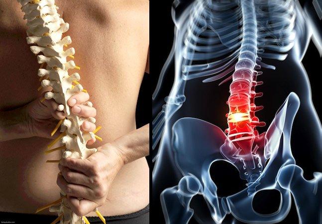 復健師教你,只要兩個動作矯正脊椎,甚至有人長了骨刺也可以治愈...
