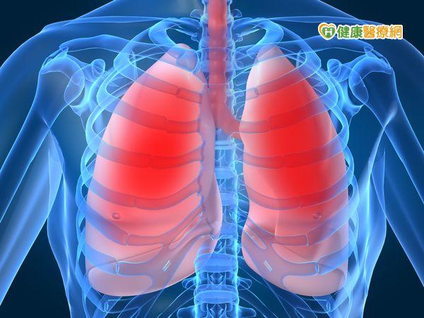 肺癌診治新趨勢早期發現治癒率達九成...