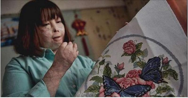 她在5歲時遭遇恐怖車禍全身縫了「1萬針」,樂觀重生的她會帶給...