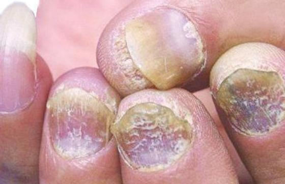 解決灰指甲的秘方,只要七天就能見效!!不要再塗奇奇怪怪的藥膏...
