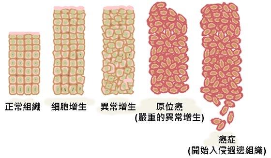 日本終於發現癌細胞的秘密了!原來癌細胞最怕的就是這個.......