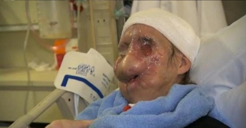 她在家裡突然間衝進一個兇手撕裂她的鼻、唇、手和眼睛,女士的面...