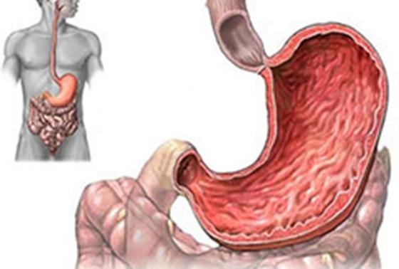 不得不看!一個老中醫的食療方子養好多年胃病!胃病是一種慢性病...