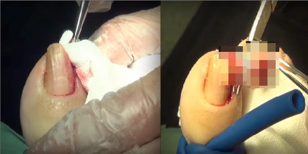 女孩的腳趾嚴重潰爛,醫生「一刀」下去連自己都嚇傻了!她的腳趾...