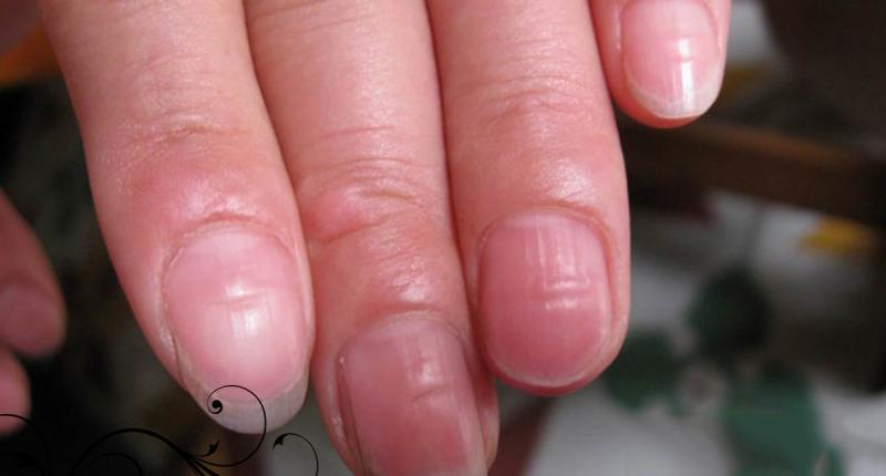 很多人都沒發現!!「指甲」凹凸不平…竟是大病前兆!!千萬...