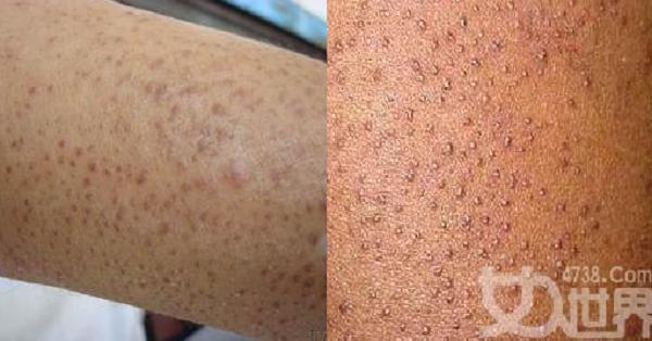 很多人身上都有「雞皮膚」,別再以為它是粉刺痘痘!堅持做「這件...