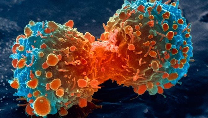 6大零食竟能殺死癌細胞!!以後誰阻止你吃,跟他翻臉!!第三種...