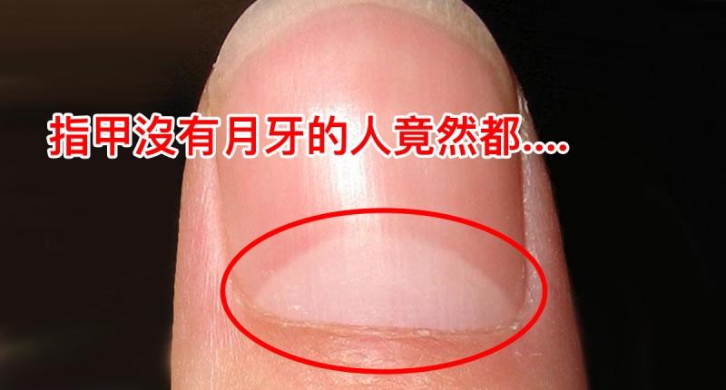 太恐怖了!指甲上沒有「月牙」的人,他們竟然都.....!這結...