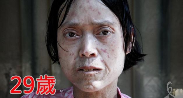 她才29歲就肺癌晚期,得肺癌原因竟然是?!90%的女性都會遇...