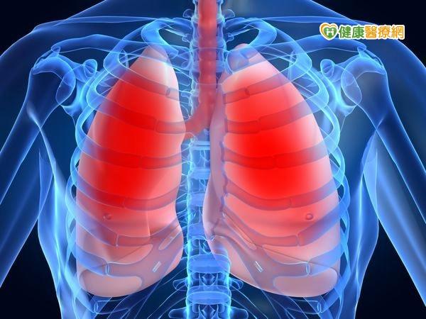 防治肺癌有道低劑量CT及早揪病灶...