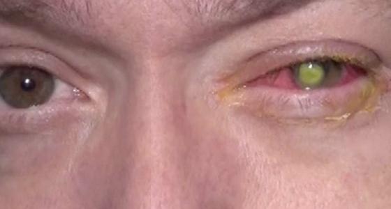 他因為一個習慣,竟造成視力惡化最後失明!這個習慣許多人都曾做...