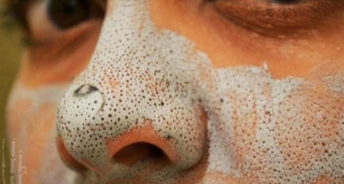 「牙膏加一物」塗在鼻子上,不到一分鐘「黑頭粉刺」全數清光!趕...