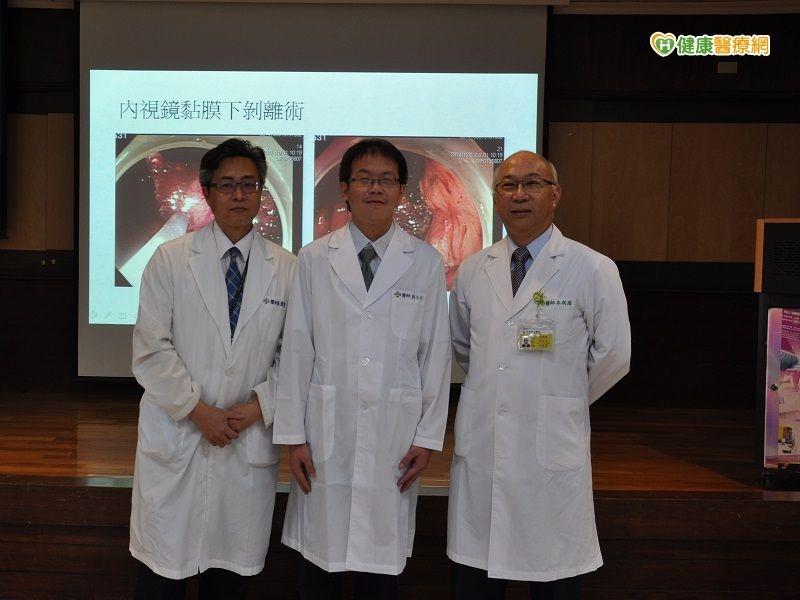 早期胃癌不必全切除靠內視鏡黏膜下剝離術...