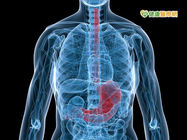 當胃食道逆流須開刀時達文西手術有6大好處...