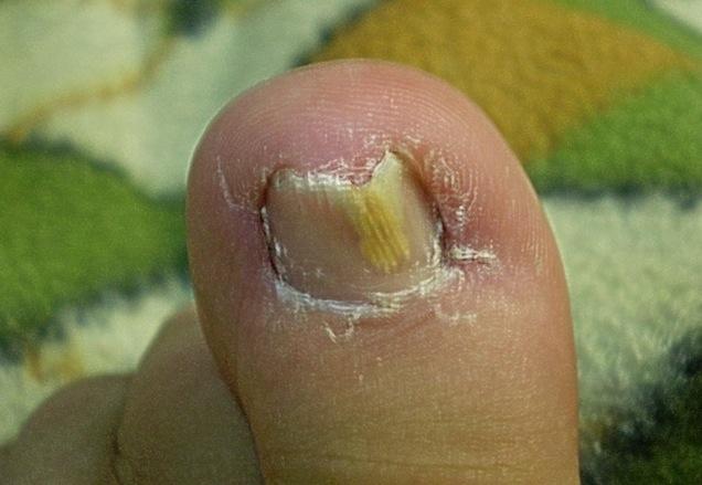 一招小妙方解決腳上老皮、老繭、雞眼、灰指甲!可以去除腳上的壞...
