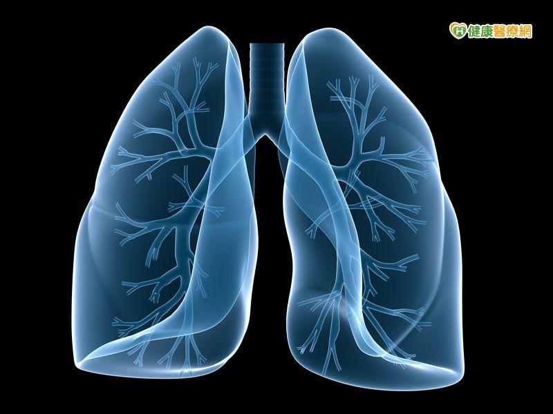 PM2.5致肺腺癌?低劑量電腦斷層是檢查利器...