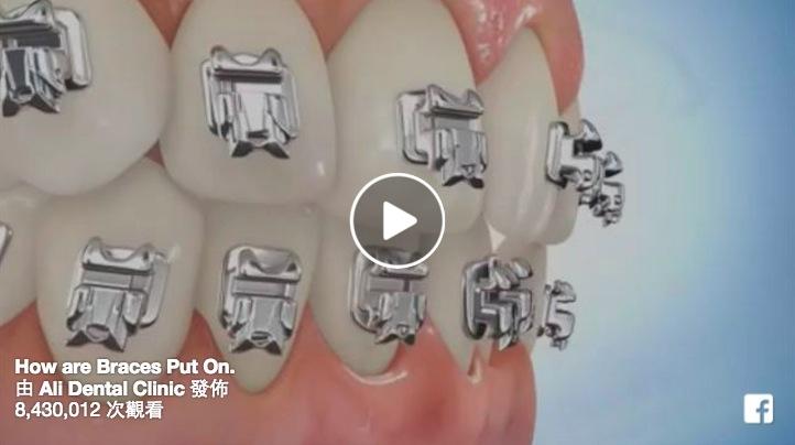牙套佩戴全過程大公開,決定戴牙套之前一定要看!...