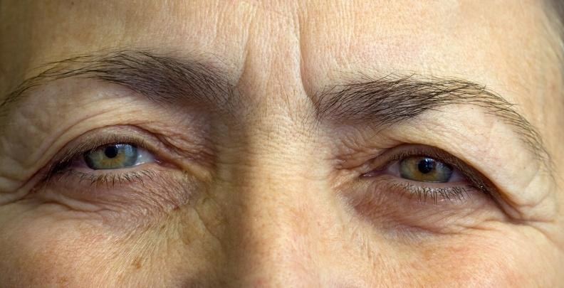 「十種」健康食物,防止老花、白內障,搶救惡視力!...
