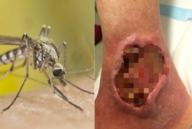 千萬小心這種蚊子!美國ㄧ女子被蚊子咬一口,竟然失去一條腿.....