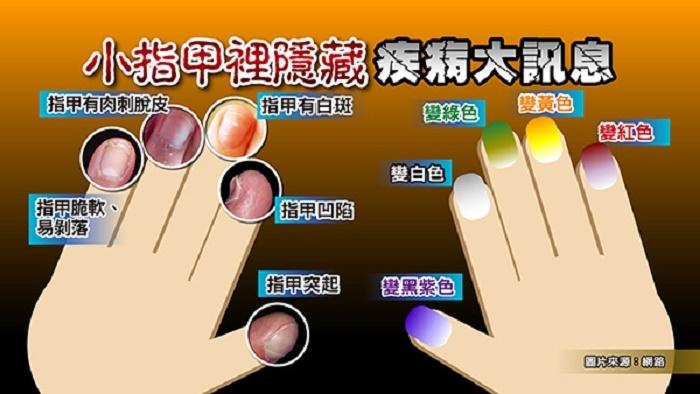 指甲有白斑代表...?!小指甲裡竟然隱藏疾病重大訊息!4個步...
