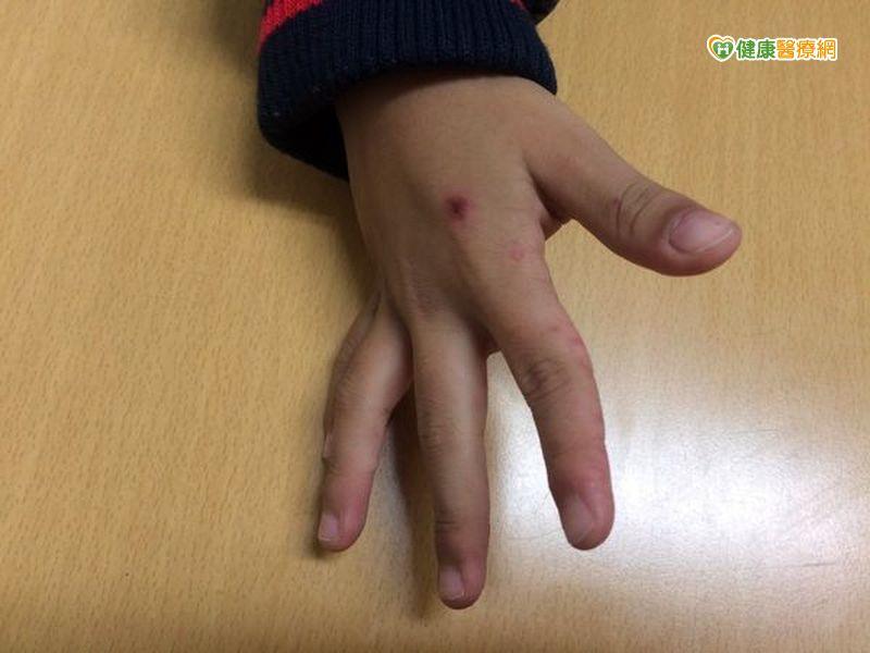 首例腸病毒D68型重症男童肢體麻痺...