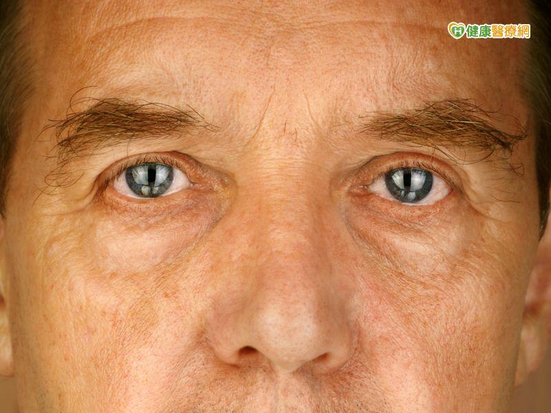 血糖濃度高視網膜病變更糟...