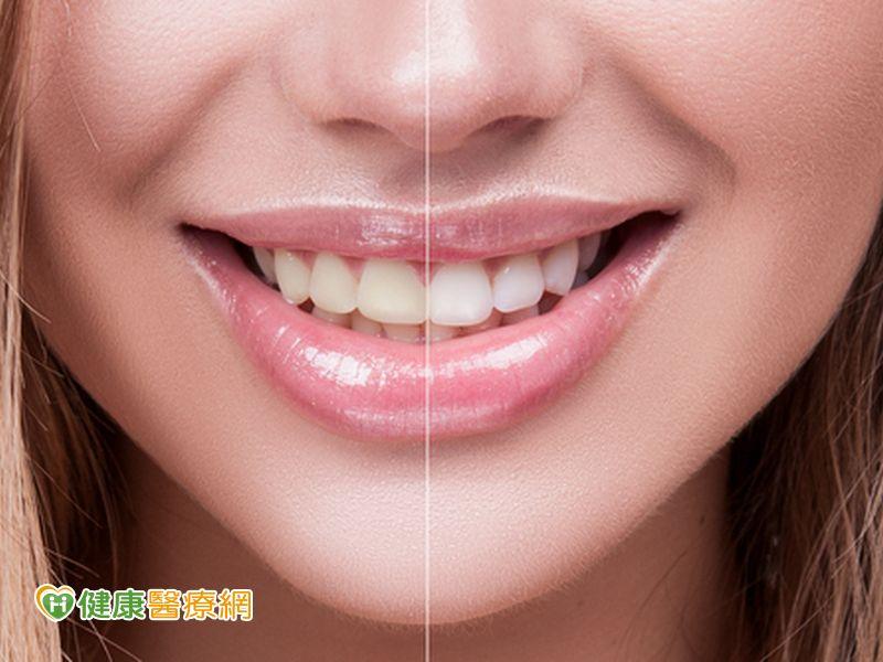 牙齒變黃成因多冷光美白誰不適合?...