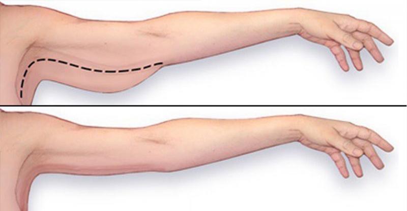 這就是能把「蝴蝶袖」完全消滅的手臂運動!每天只須要花10分鐘...