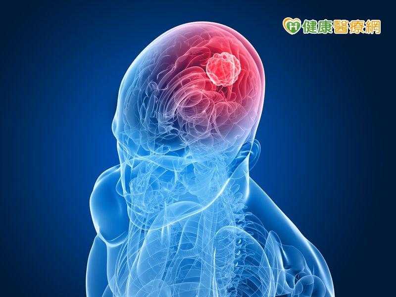 記憶短期大幅衰退小心腦瘤威脅!...