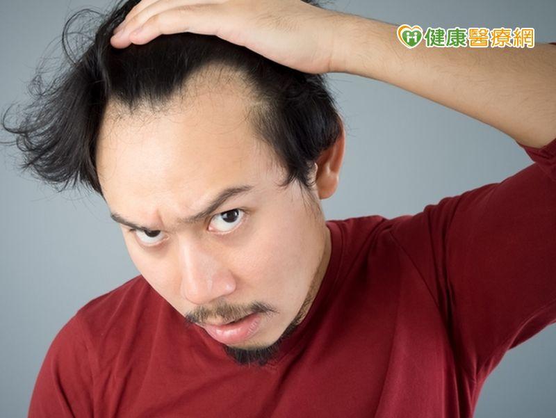 壓力大導致圓形禿不要怕、治療有方法!...