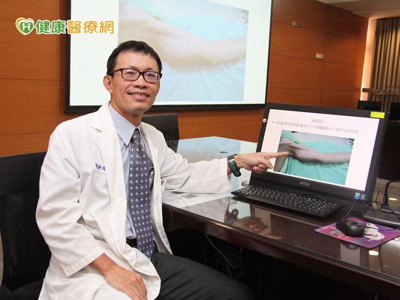 肢體異常腫大恐是黏液纖維惡性肉瘤惹禍...