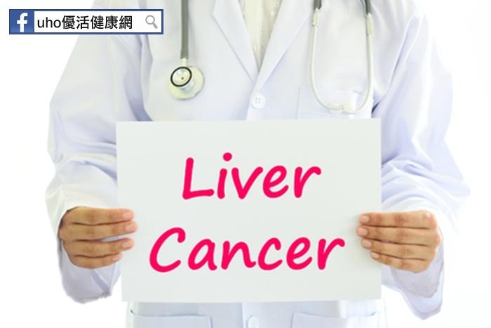 CT檢查也會失準!新型肝標靶顯影,可抓出早期肝癌...