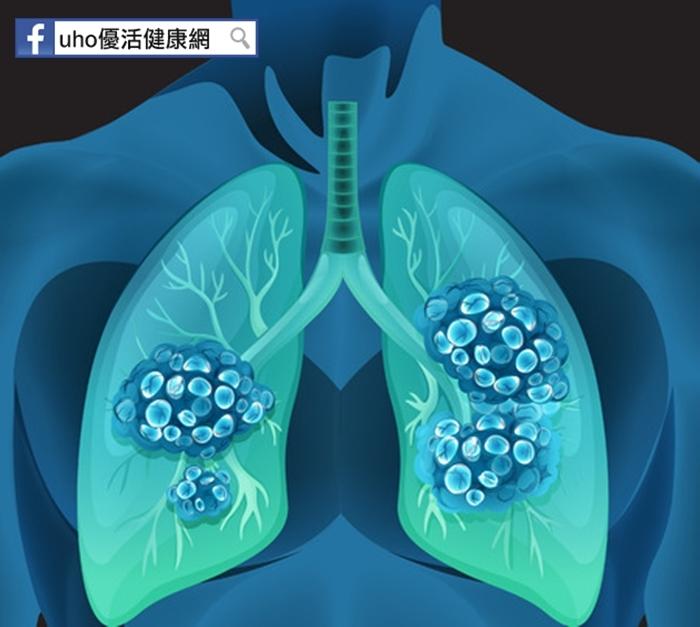 10大癌症第二!以為年輕就不會得肺癌嗎?想早期發現,你就必須...