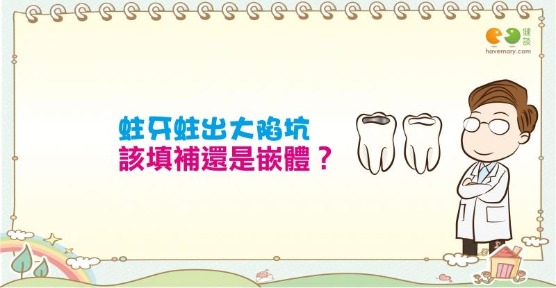 蛀牙蛀出大陷坑該填補還是嵌體醫師這樣說|認識疾病蛀牙篇2...
