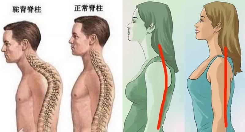 「駝背」已成習慣自然?只要3個簡單的動作就能矯正...背痛、...