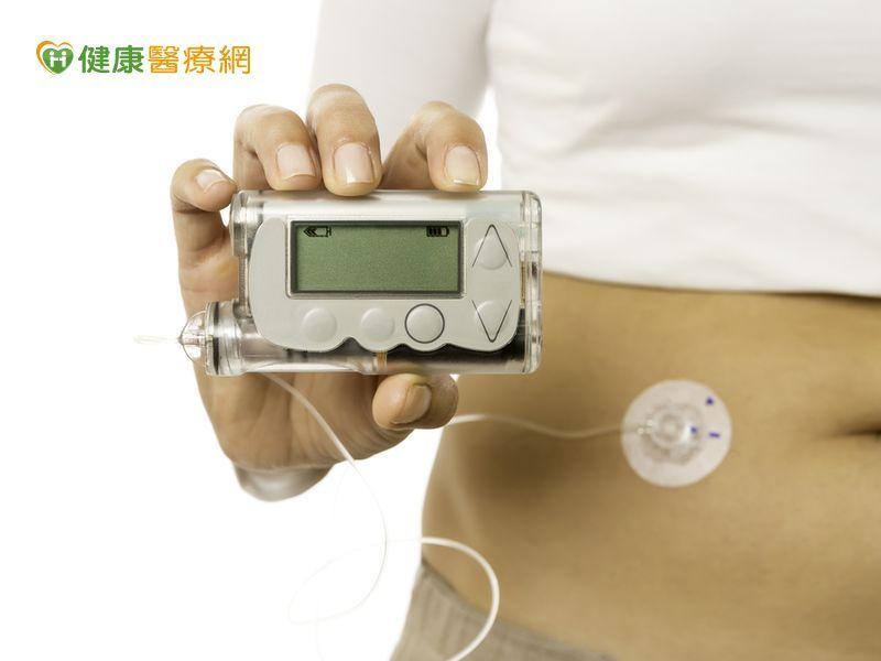 「人造胰臟」測試結果出爐了!...