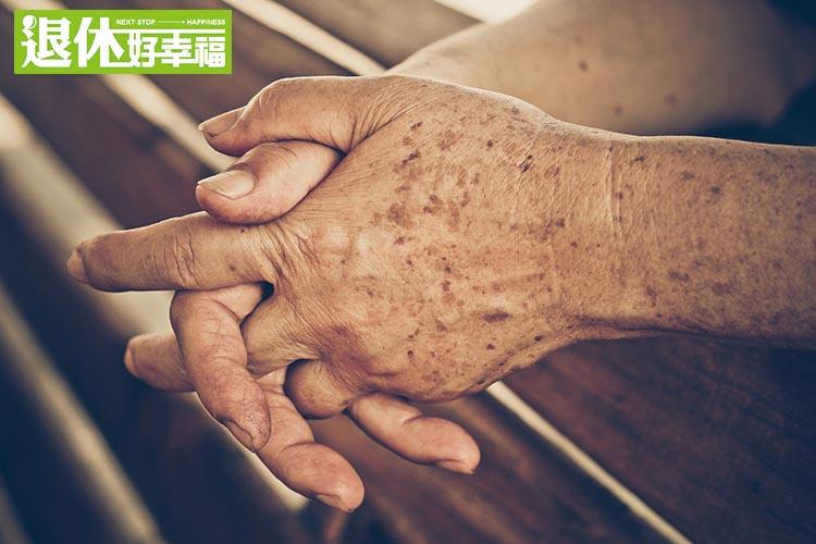 原來老人斑是這樣來的...可以用「這種治療方法」改善!...