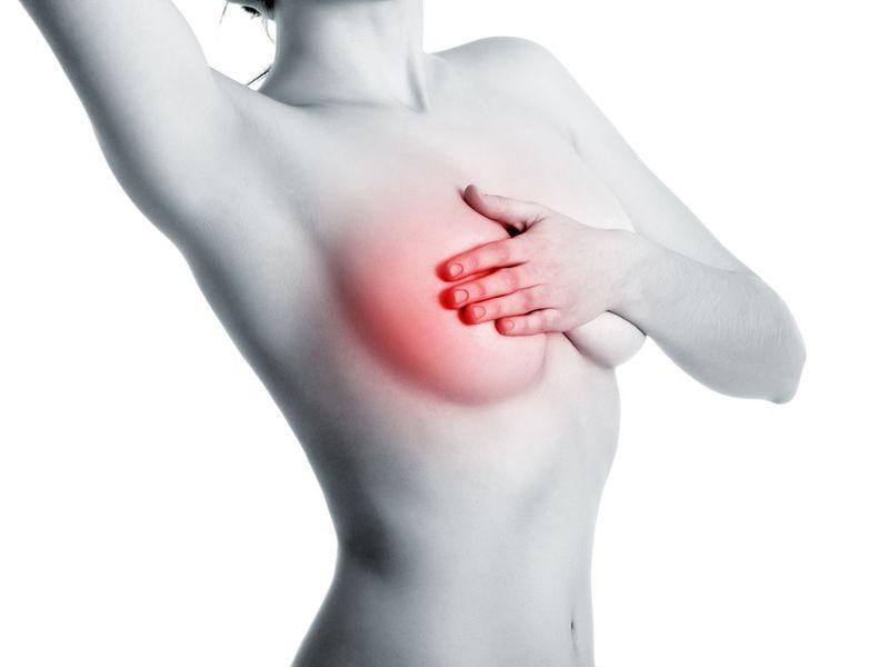早期乳癌及早治療5年存活率超過9成...