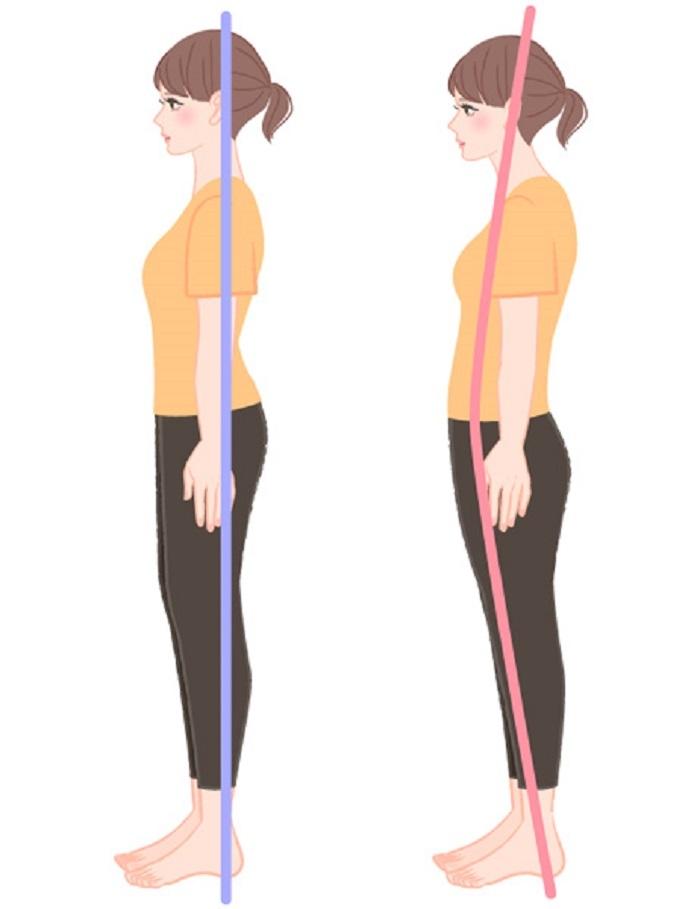瘦不下來原來是因為姿勢不對!總是彎腰駝背嗎?4個動作,趕緊校...