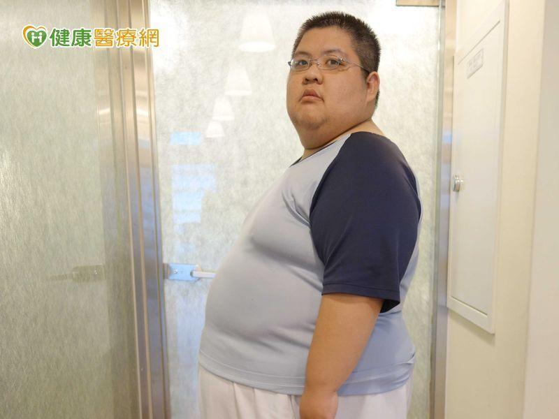 減重手術治療助超級肥胖者鏟71公斤...