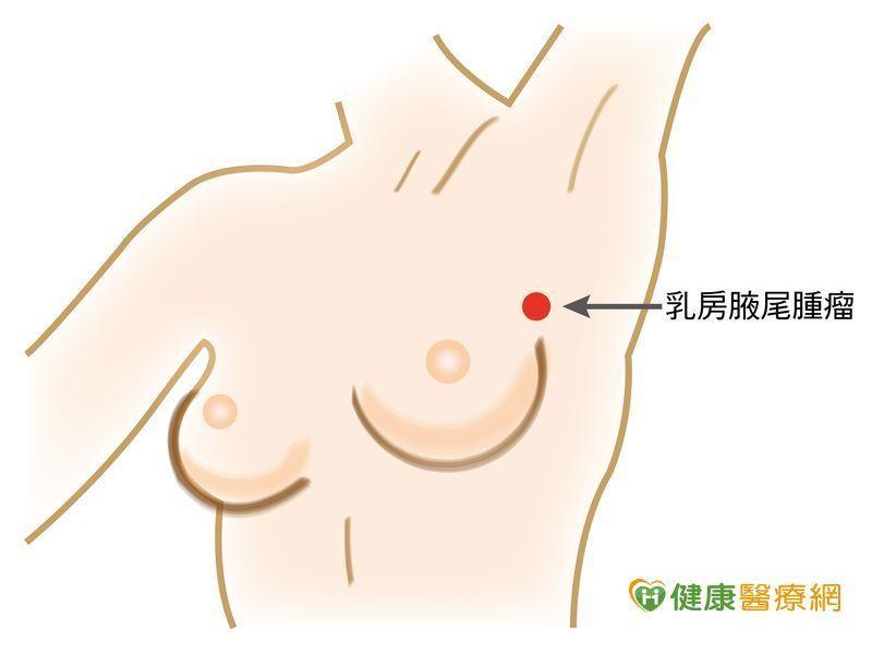 乳癌死角!小心乳腺末端乳房腋尾處...